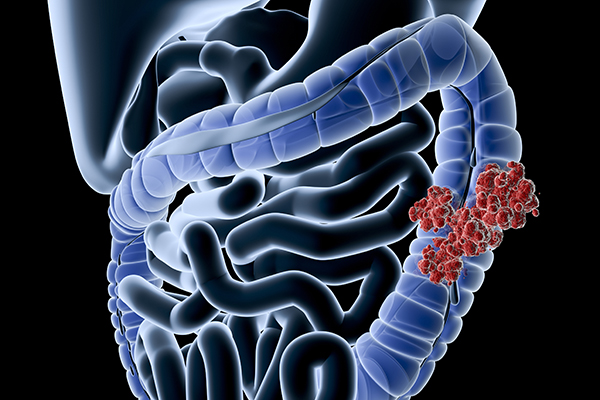Colorectal Cancer Screening Can Stop It Before It Starts Radiology Associates Imaging