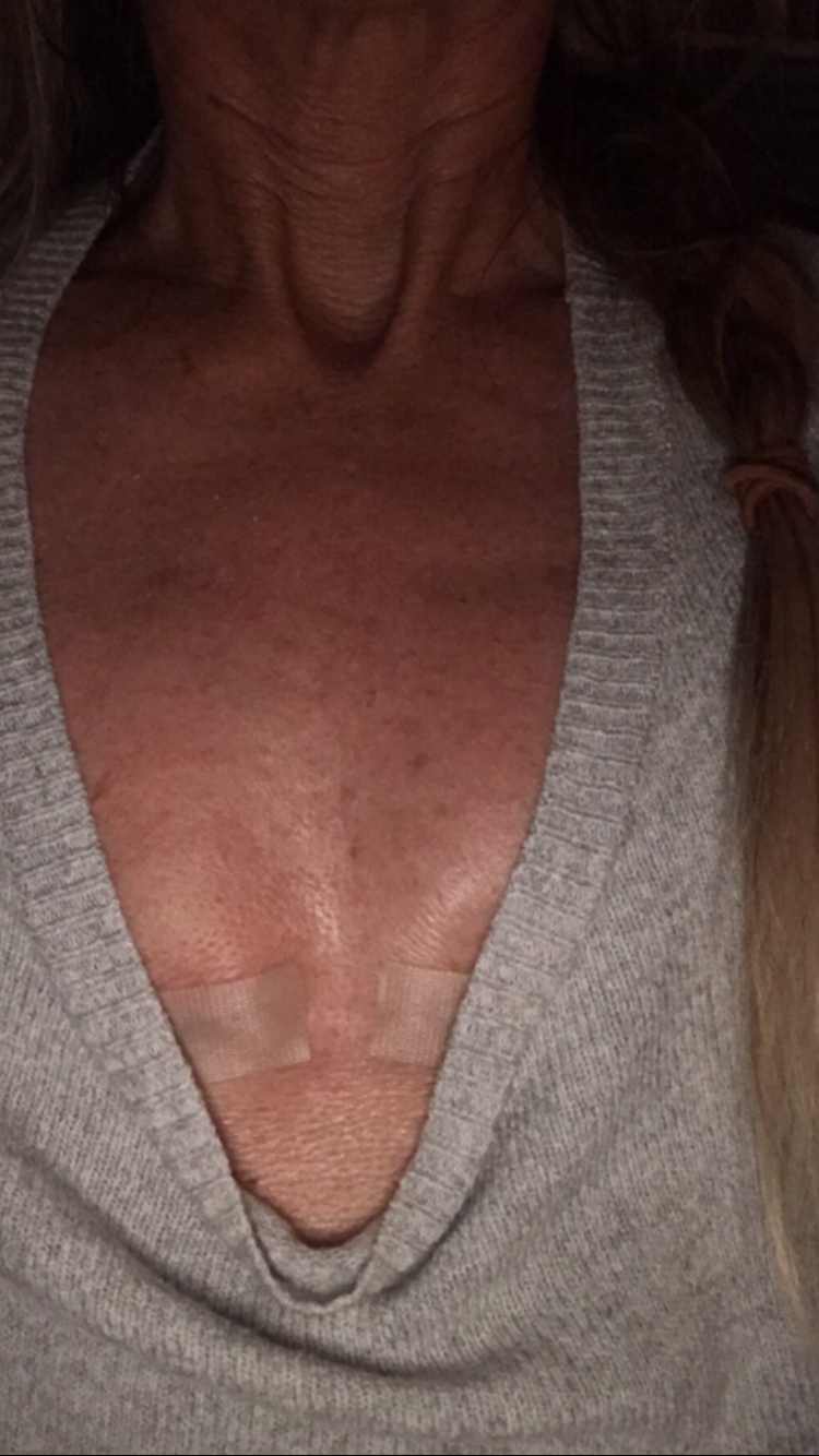 A week after my surgery. I asked Dr. Brenner, please leave me a little tiny bit of cleavage… wink wink :)