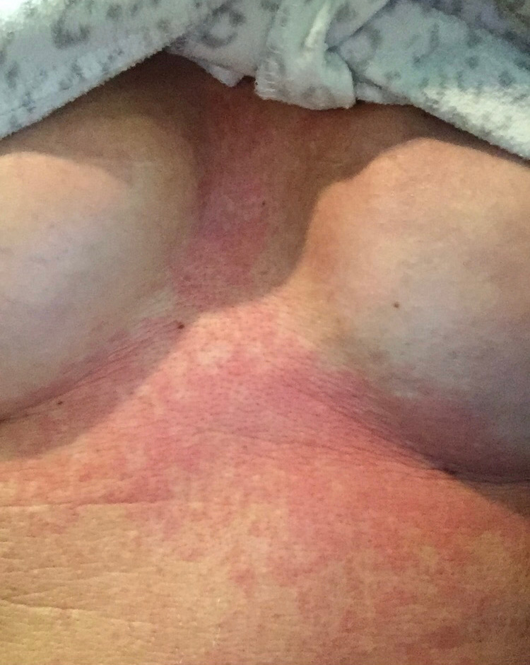 Rash I had a month before surgery