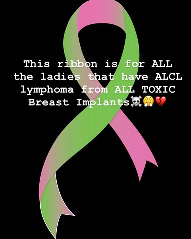 So sad we now have a ribbon for ALCL ...which is not breast cancer, it's a lymphoma that is on the rise everyday now💔  Thank god for social media 🙌🏻🌎These 40+ chemicals leach into our lymphatics everyday. It's like we play Russian Roulette with these toxic bags😱 This is now becoming an epidemic and I'm SO grateful these are OUT of my body 😭🙌🏻🙌🏻 Justice is coming 👊🏻🌎 • • #ribbon#corruption #alcl #cancer #lymphoma #togetherwearestronger #justice #truthbetold💯 #traumasurvivor #tickingtimebombs💣 💣#evilindustry 💀🤬 @suzie7194 @holistic_hunnie @livingmybestlifedly @julietsully @tanisnielsen @mbscanlon