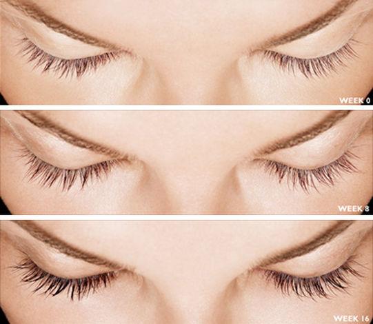 The Eyelash Dr Lumisse Lumigan.jpg