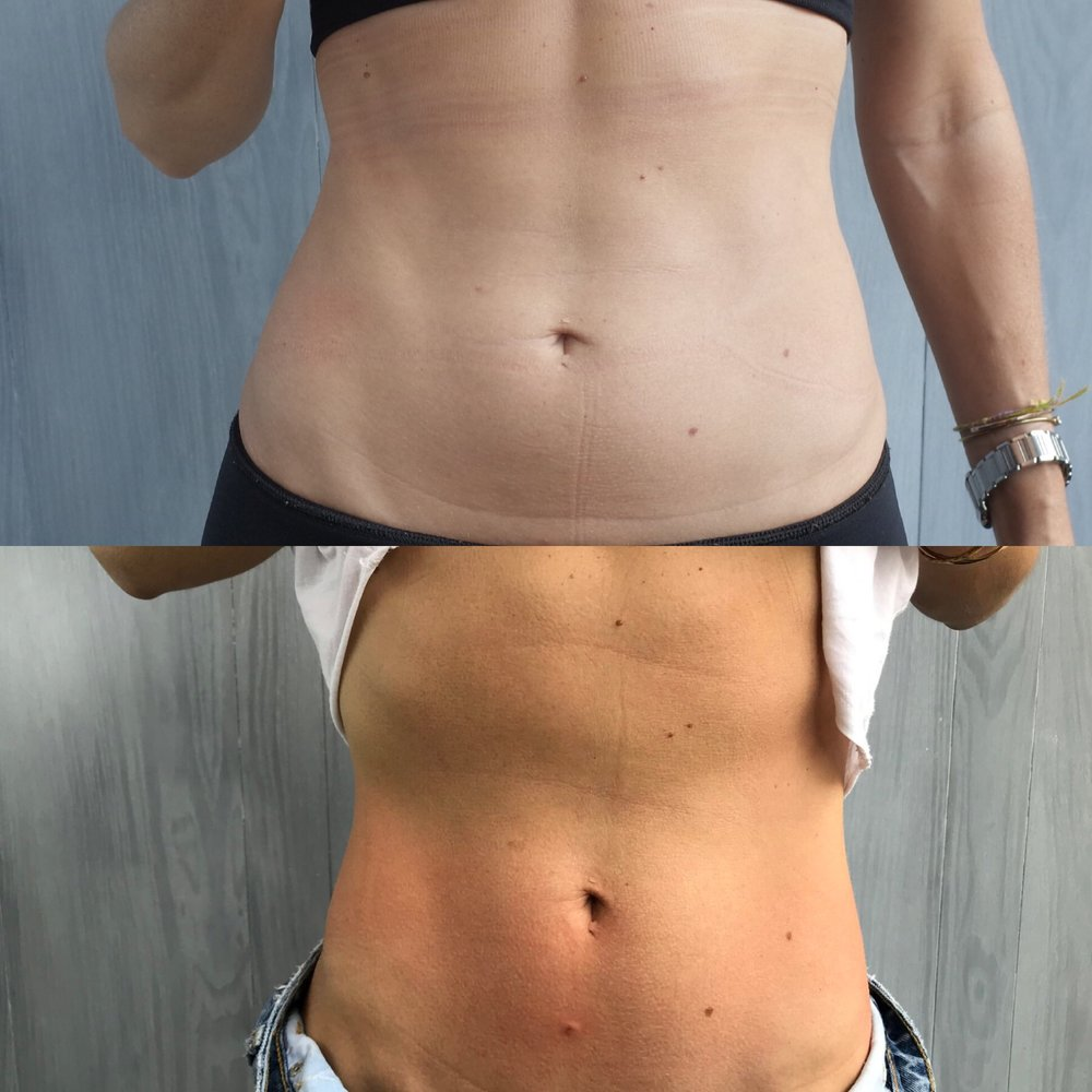 Cryoskin Slim Before After 10.JPG