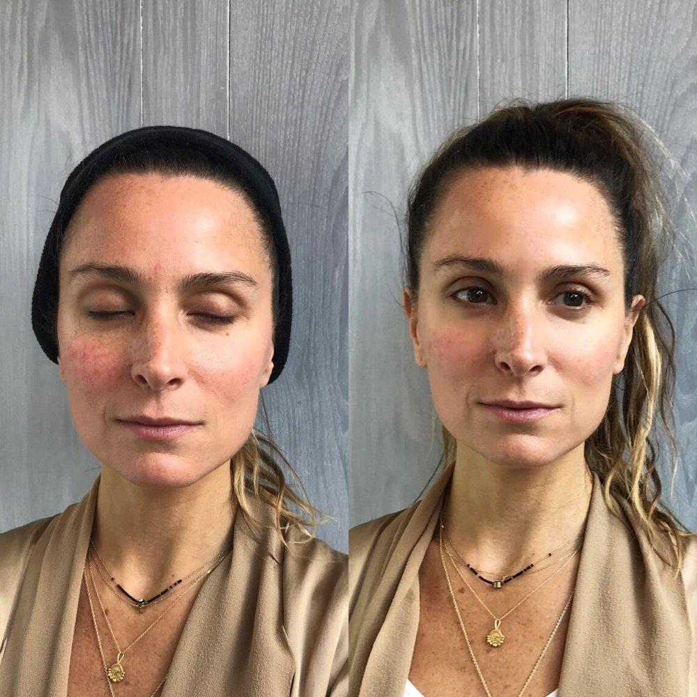 Cryoskin Facial Before After 1.JPG