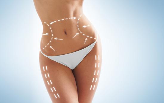 Liposuction -