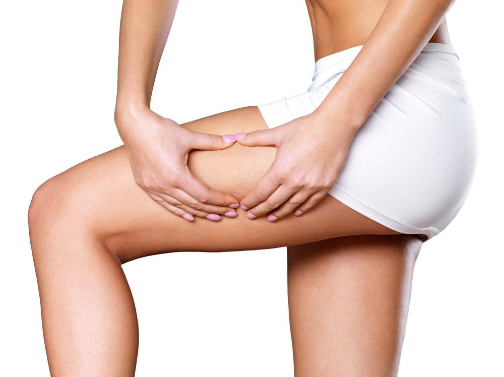 Thigh Lift - Thighplasty