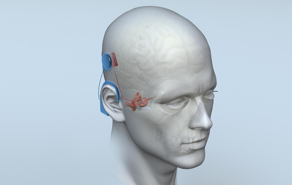 Wired_bionic_ear_final-1.jpg