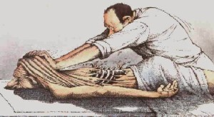 Does Rolfing Structural Integration Hurt?