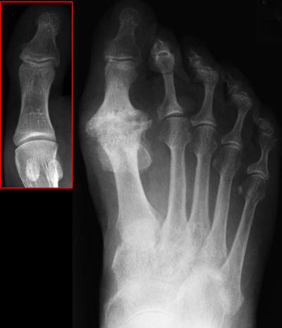 Big Toe Joint Arthritis