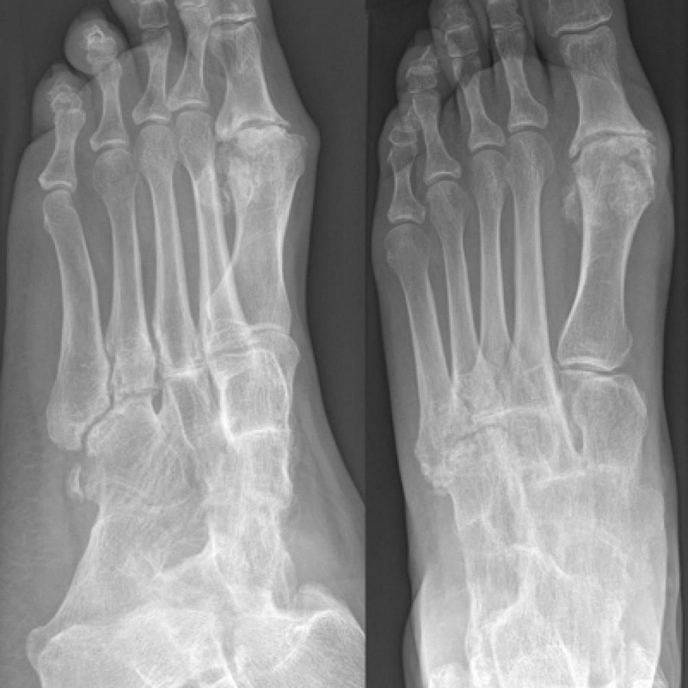 ankle-arthritis-1024x1024.jpg
