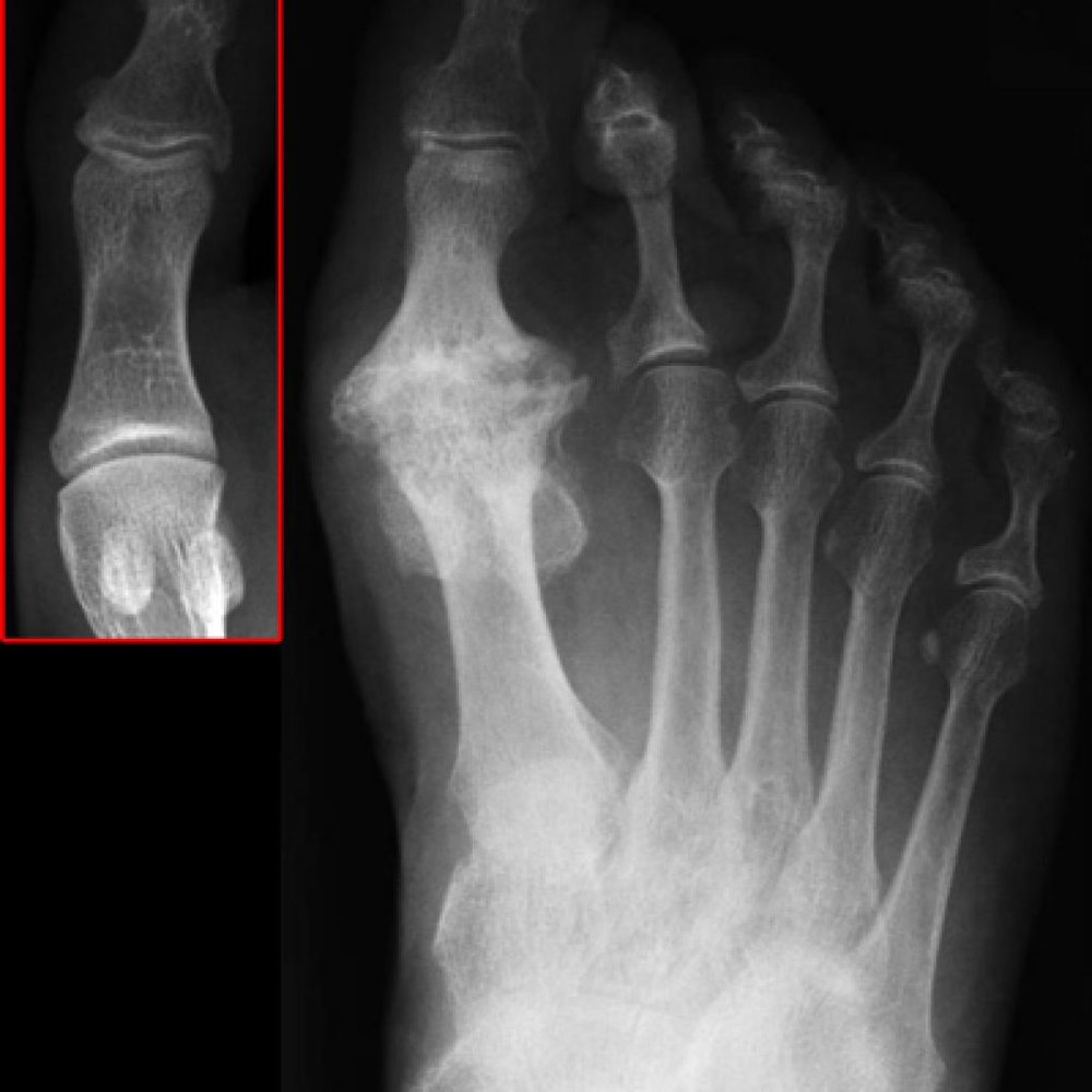 big-toe-joint-arthritis-1024x1024.jpg