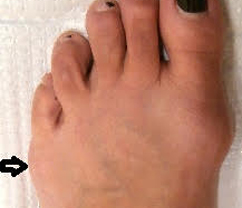 institute-beaute-tailors-bunion-before.jpg