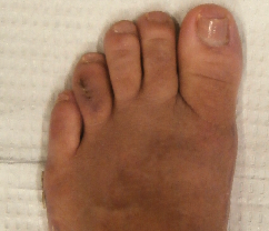institute-beaute-tailors-bunion-after.png