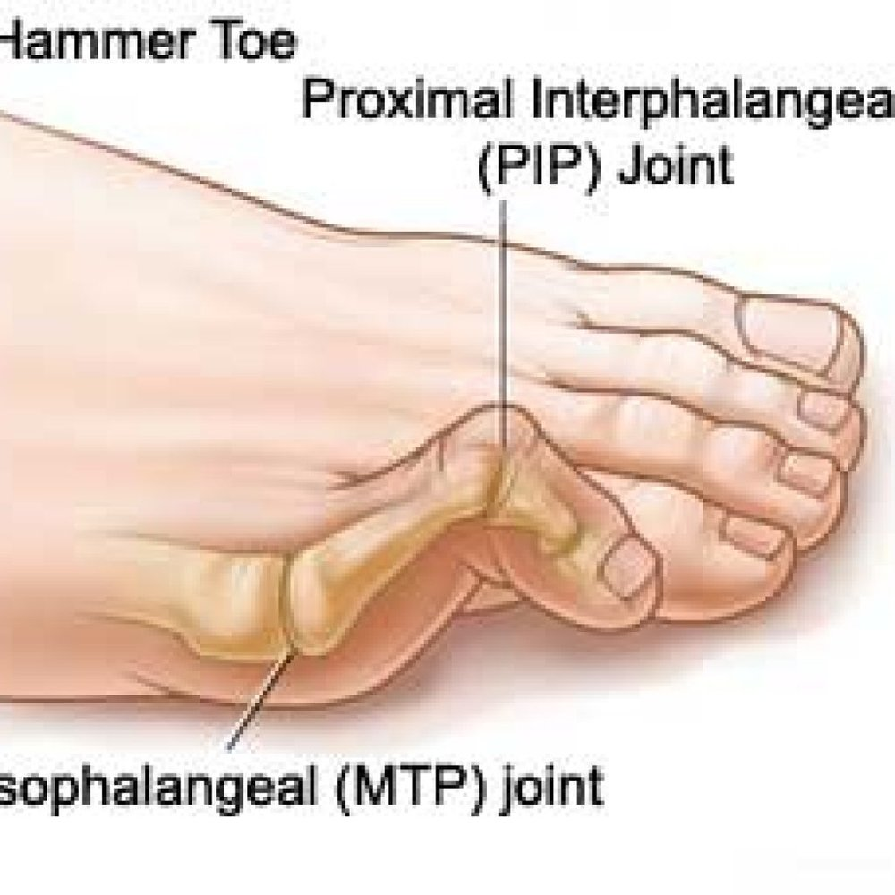 Hammertoes…What to Do? - By Dr. Suzanne Levine