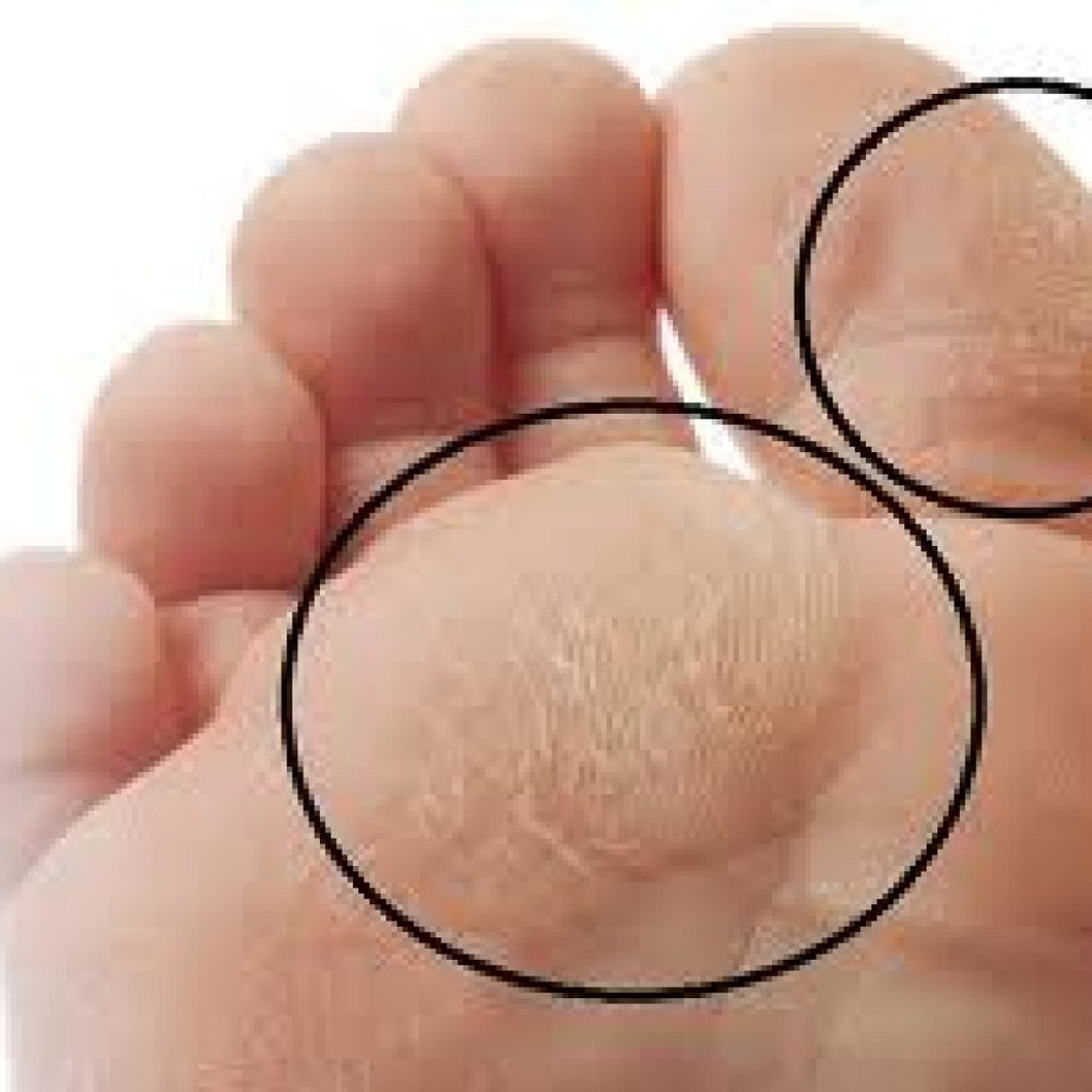 How Can a Pillow Fix Your Callus? - By Dr. Suzanne Levine