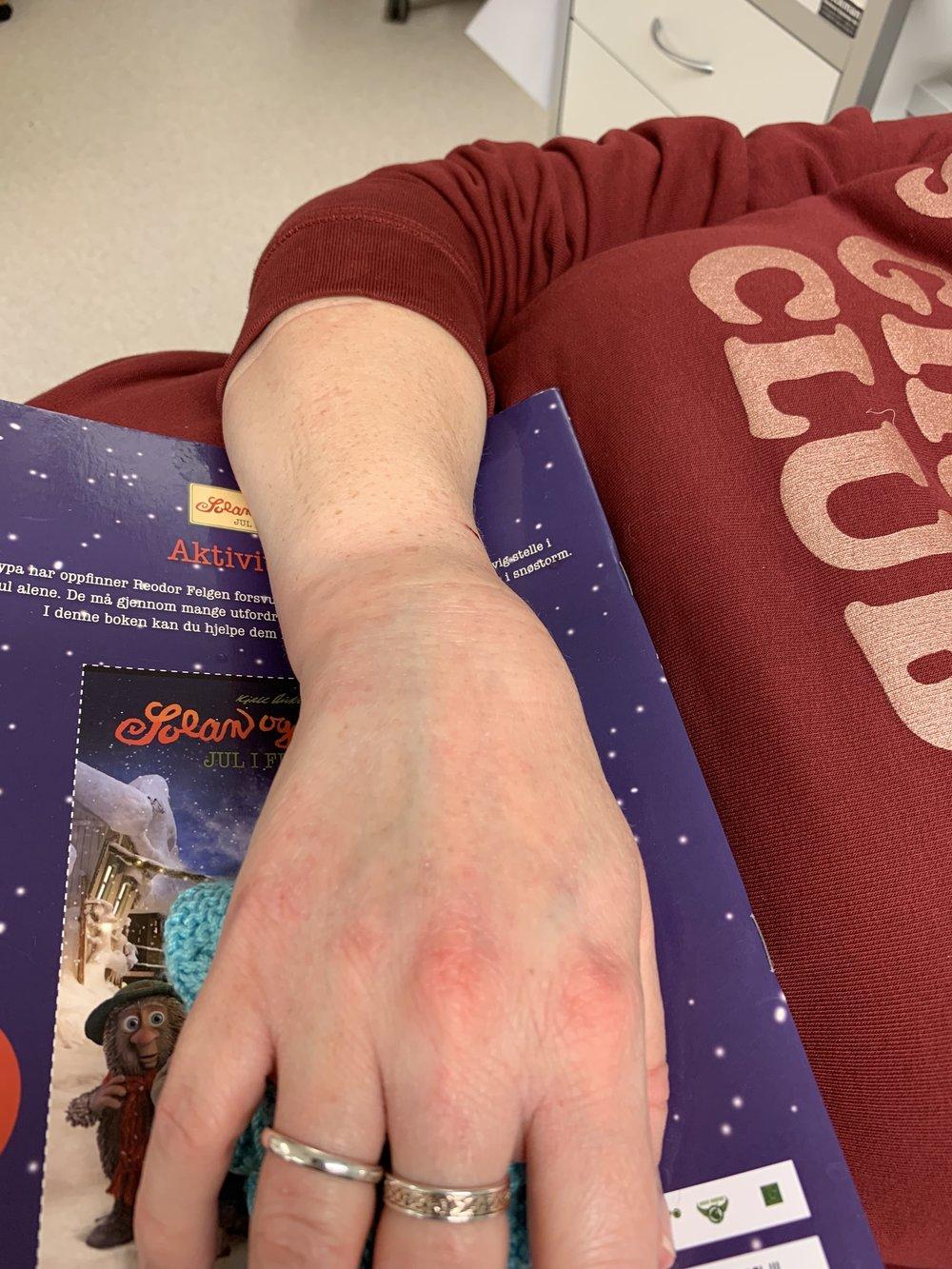 My poor hand!