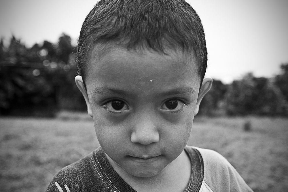 Benjamín, 4 and a half years old, has lived his short life in the land surrounding the factory. He is one of the faces of the tragedy. The analysis of his blood determined levels of lead well above the tolerable limits. In children, lead poisoning often causes learning problems.