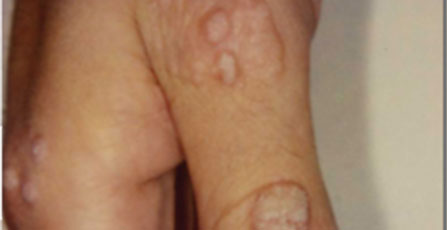 warts_before.jpg