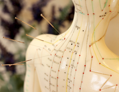 About Acupuncture - Acupuncture is a complete medical system which has been used for thousands of years to effectively treat a variety of conditions.