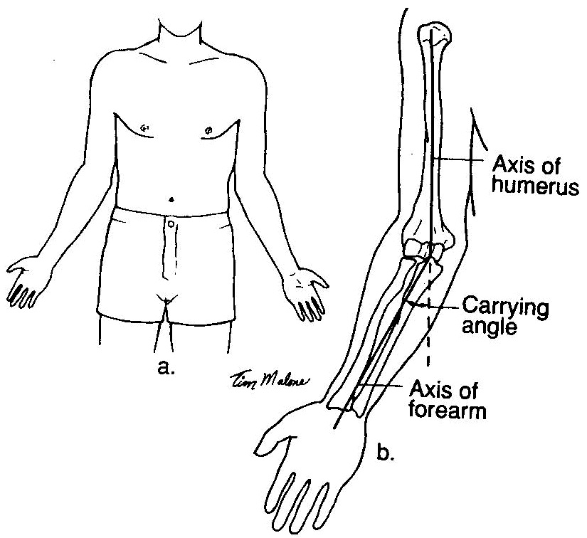 - Excessive Carrying Angle of the Elbow