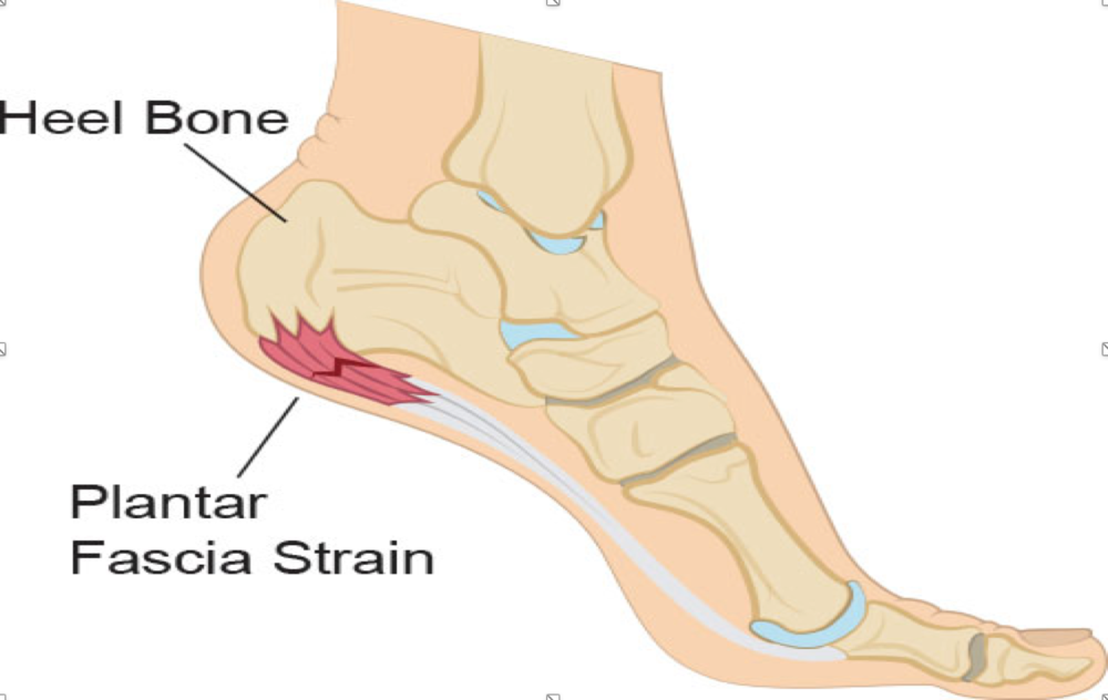 What Can Physioflow do For My Plantar Fasciitis?    Education  regarding proper footwear and the potential benefits of using  orthotic  insoles in your shoes.  Provision of a  customized exercise prescription plan  with accessible online videos demonstrating the performance of all exercises for home use.  Education centered around  activity modification  to ensure that you can complete your daily activities while minimizing the stress on your foot.  A combination of physiotherapy modalities such as  shock wave therapy, interferential current (IFC), therapeutic ultrasound and cold laser  to promote healing, help pain management and reduce inflammation.   Soft tissue release  on the plantar fascia of the foot for pain relief.