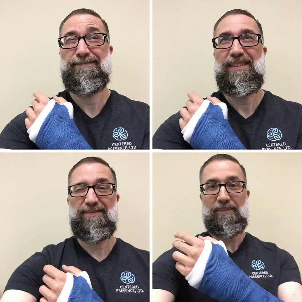 Photos of Michael Patrick and broken arm