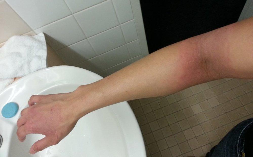 Eczema flare up