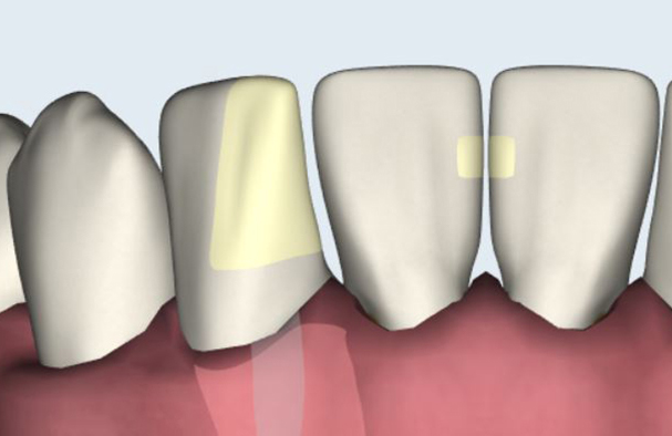 Each tooth in SmartChart features a huge number of condition combinations.