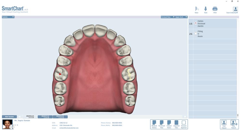 Patient1-Odontogram-Upper-Occlusal.png