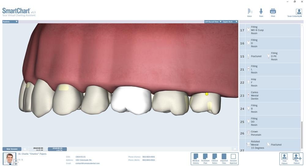 Patient2-Odontogram-Upper-Left.png