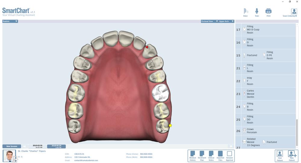 Patient2-Odontogram-Upper-Occlusal.png