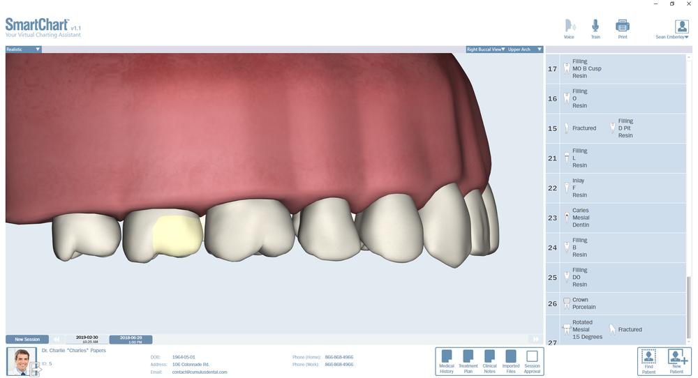Patient2-Odontogram-Upper-Right.png