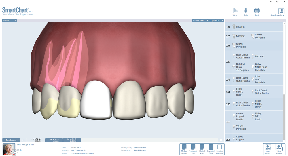Patient3-Odontogram-Upper-Anterior.png