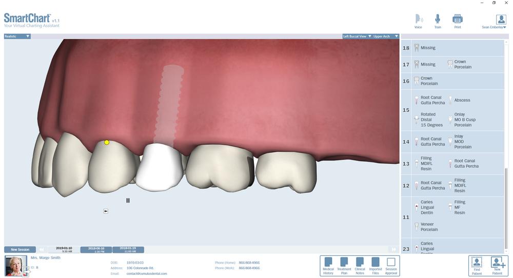 Patient3-Odontogram-Upper-Left.png