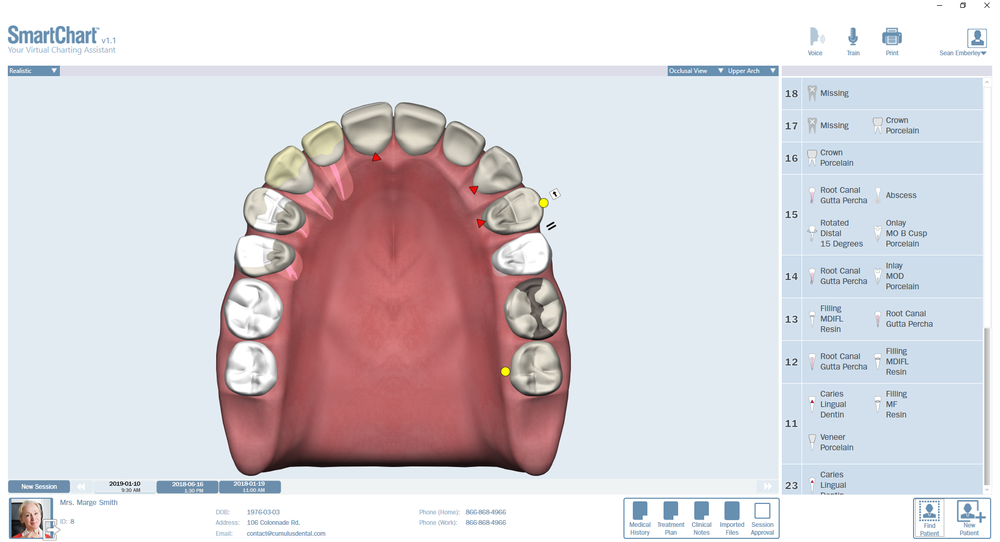 Patient3-Odontogram-Upper-Occlusal.png