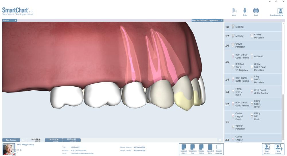 Patient3-Odontogram-Upper-Right.png