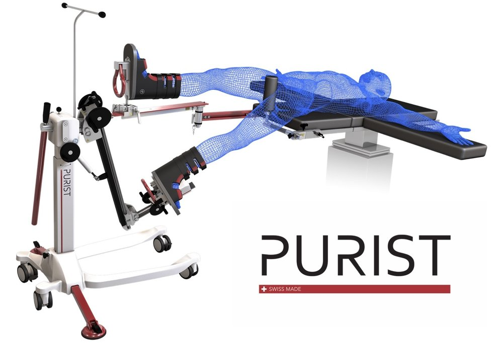 The PURIST Leg Positioning System (also known as the purist table, or purist table extension) is precise orthopedic device for anterior hip replacement. It negates the need for large fracture tables and can be used with general surgical tables. This anterior hip device offers greater mobility and precision compared to competitors like the Medacta AMIS, Mizuho OSI Hana, and the Schaerer Medical RotexTable Extension by Condor.