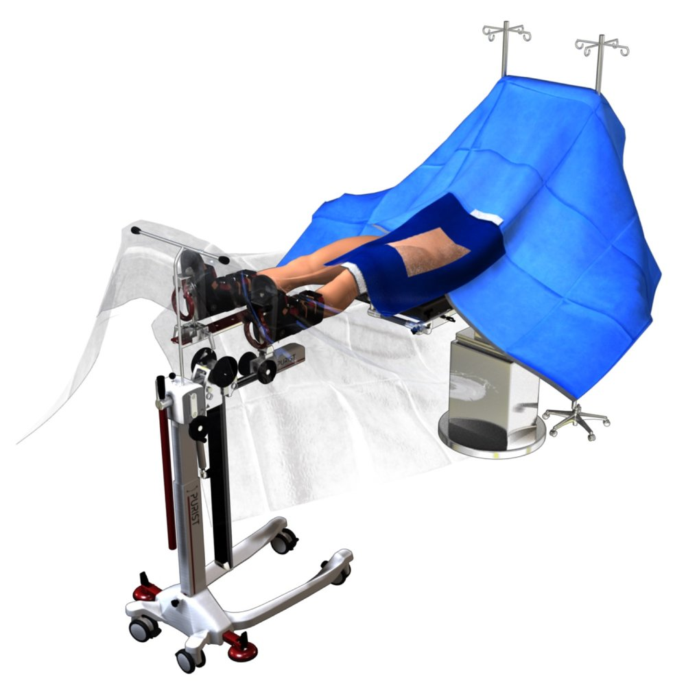 The innovative orthopedic technologies anterior hip drape simplifies OR changeover and was specifically designed for the minimally invasive anterior approach to hip replacement.