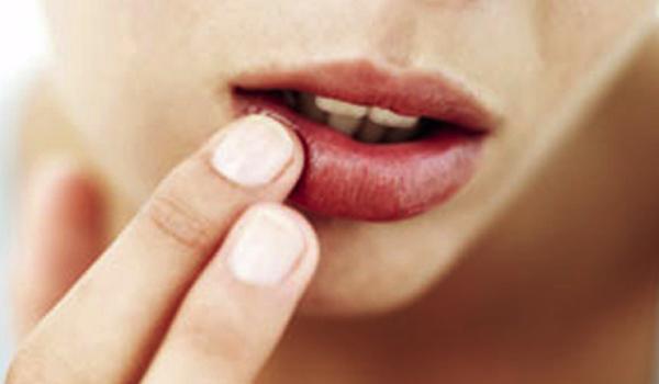 dry_lips.jpg