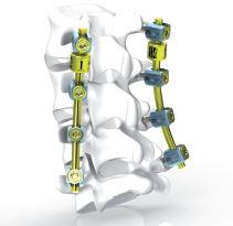 Biospine Implants (2014)