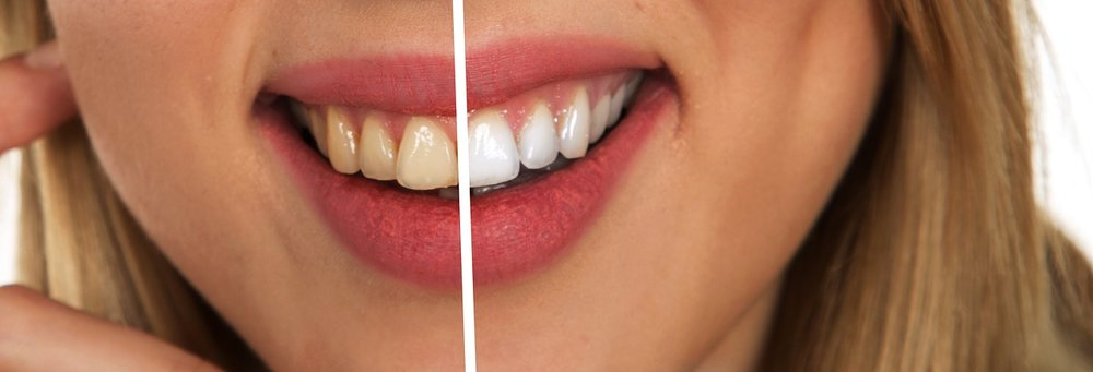 tooth-2414909_1280.jpg