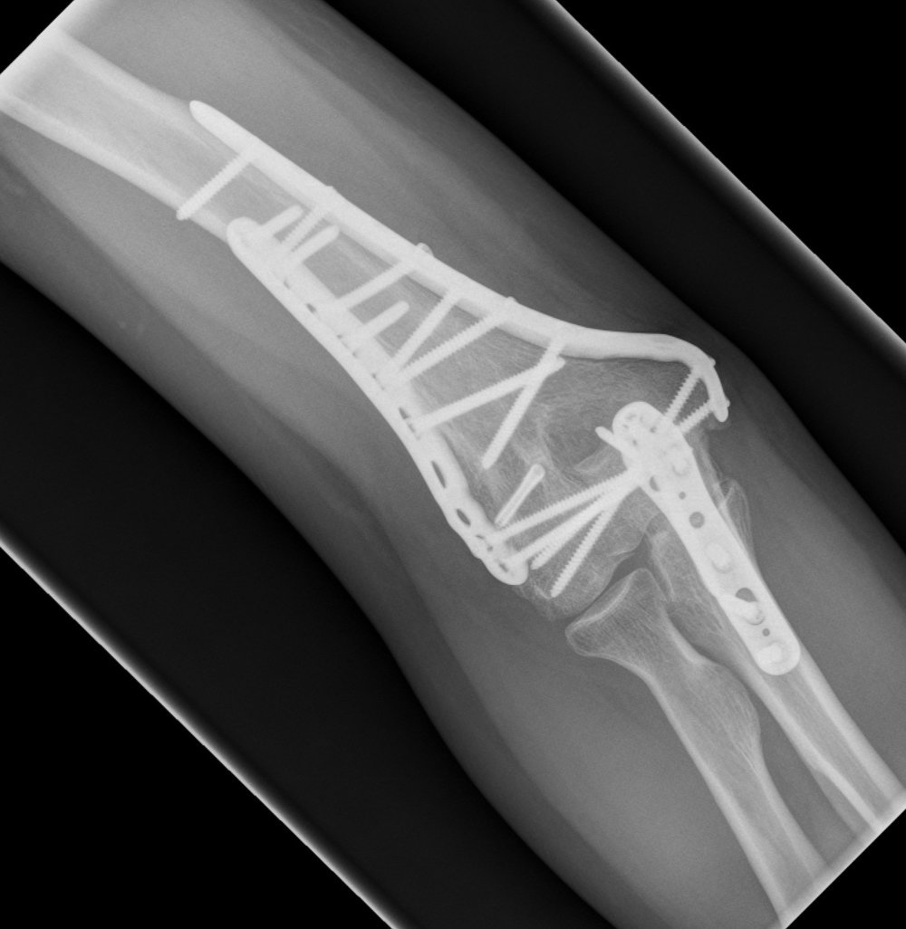 Post operative - united fracture