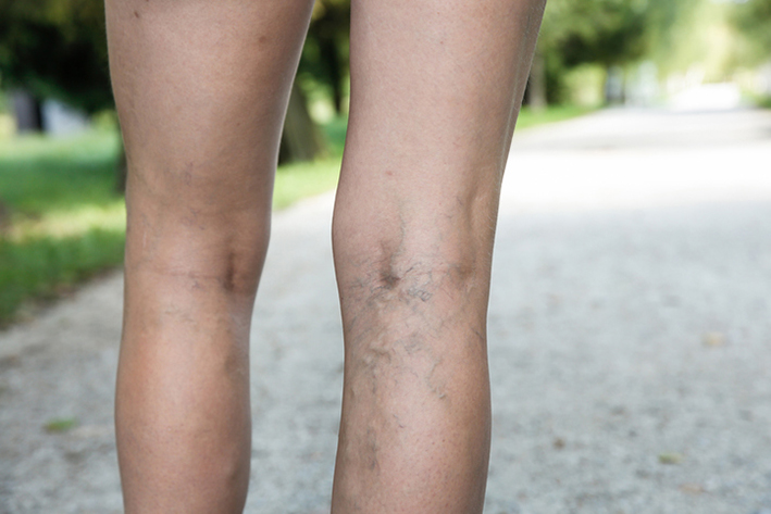 Image of varicose veins in legs behind the knee.