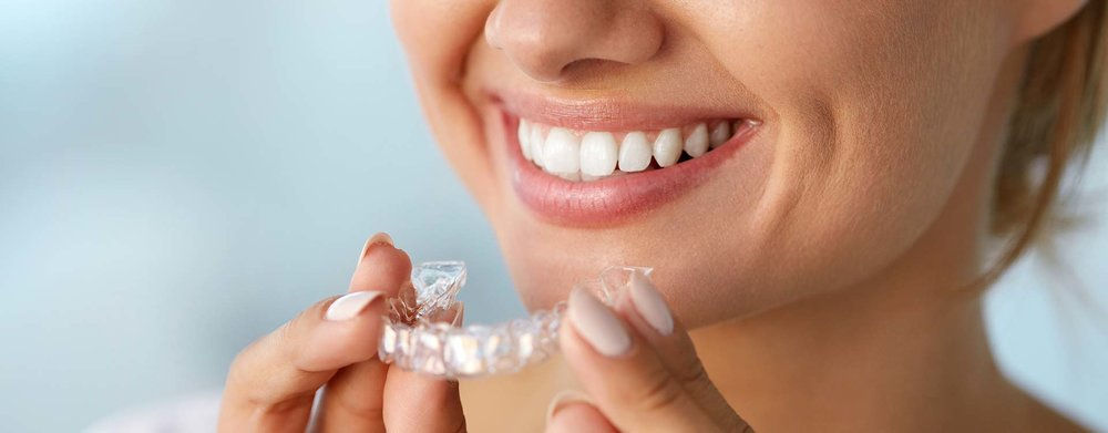hero-services-invisalign.jpg