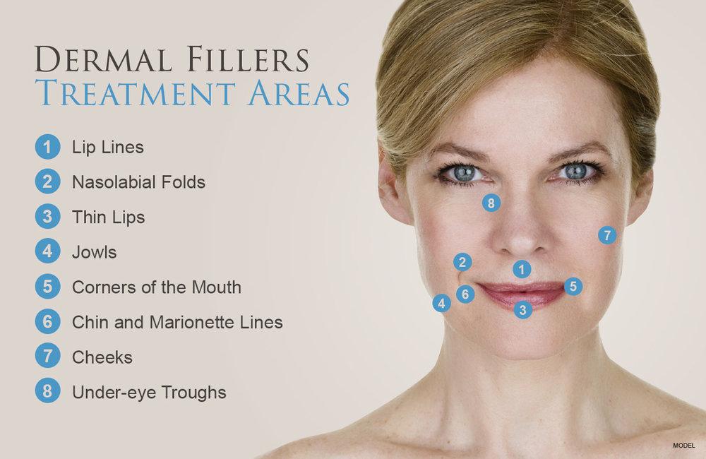 fillers-treat-areas.jpg