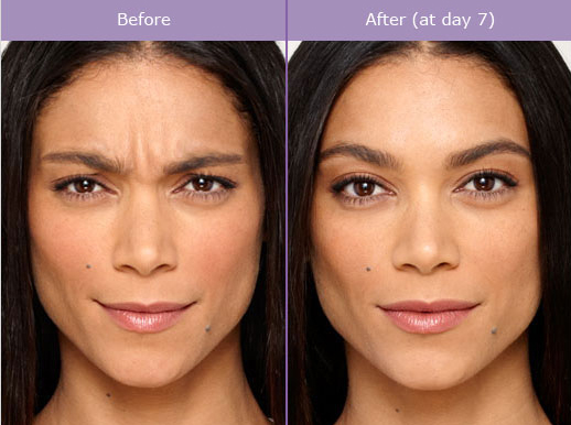 botox-before-and-after-photo.jpg