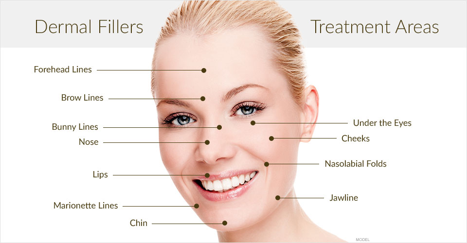 dermal-filler-treatment-areas.jpg