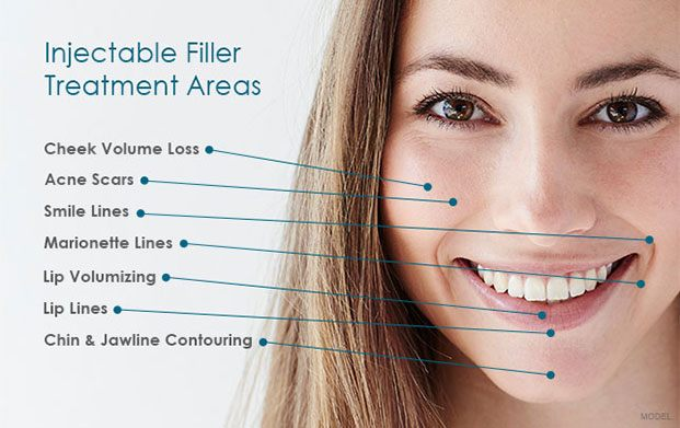injectable_filler_treatement_areas.jpg