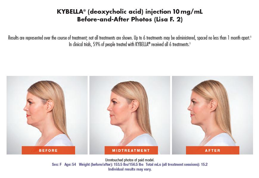 Kybella_Lisa.png