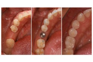 dental-implant-300x200.jpg