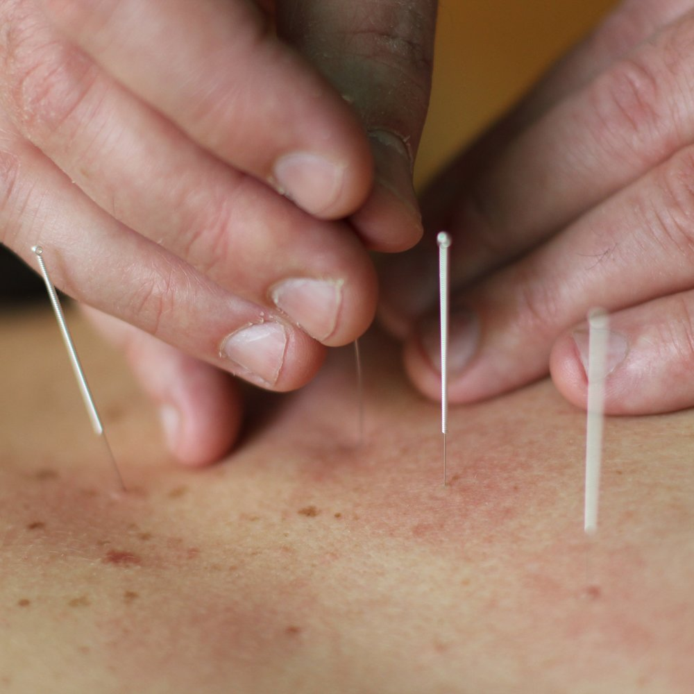 Acupuncture - Just as a guitar has strings that are tuned to a specific tone to create beautiful music, your body has lines of influence that run through your muscles, organs and connective tissue, connecting you into one whole instrument from top to bottom. When these lines, called meridians or channels, are at just the right tension, you are in tune and the resulting music is expressed as a healthy, harmonious life. When they are too tight, or too loose, you experience pain, fatigue, emotional difficulties, and other symptoms. Acupuncture is a retuning of your body, relaxing what is too tight and toning what is too lax.In addition to classical acupuncture, I often address musculoskeletal and painful conditions by inserting the needles into trigger points (hardened, painful knots of contracted muscle tissue) or motor points (sites where the nerves that control the muscles are particularly accessible).